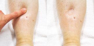 Diagnostyka obrzęku limfatycznego w przebiegu choroby nowotworowej