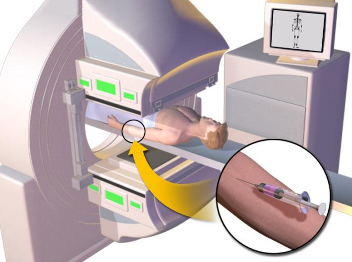 Przebieg scyntygrafii kości od wstrzyknięcia radioznacznika do rejestracji obrazu